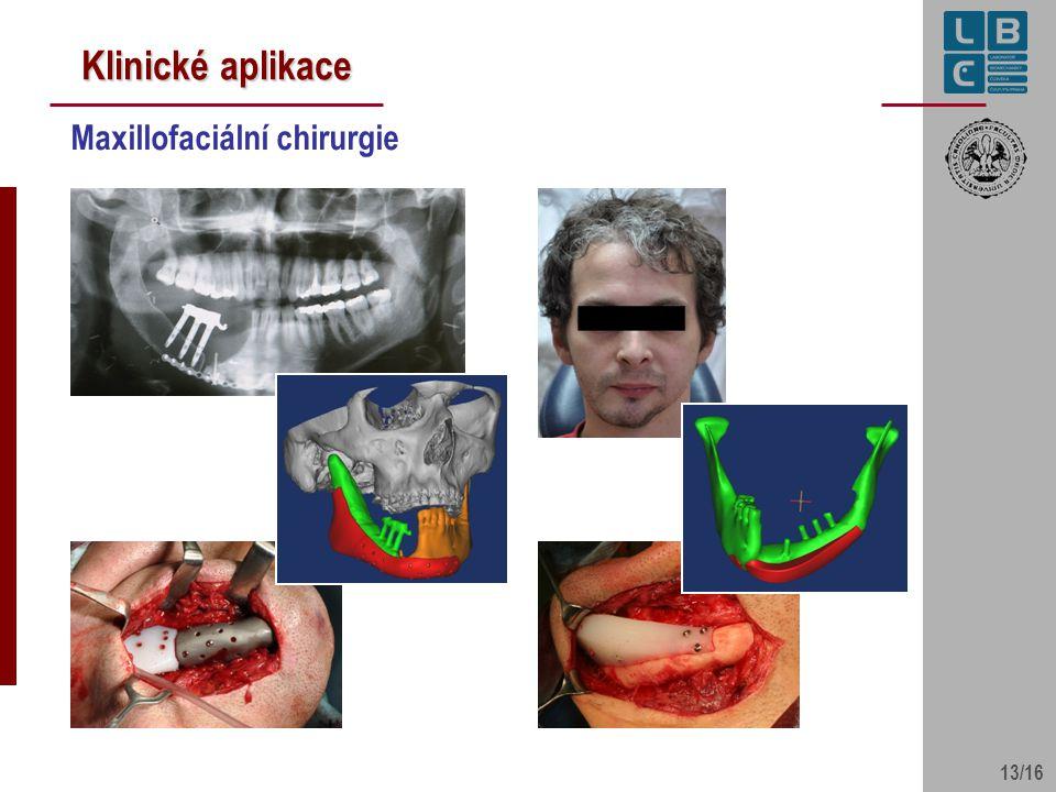 13/16 Klinické aplikace Maxillofaciální chirurgie