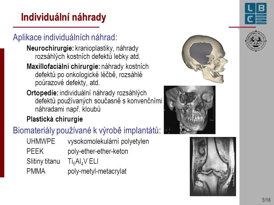 5/16 Individuální náhrady Aplikace individuálních náhrad: Neurochirurgie: kranioplastiky, náhrady rozsáhlých kostních defektů lebky atd. Maxillofaciál