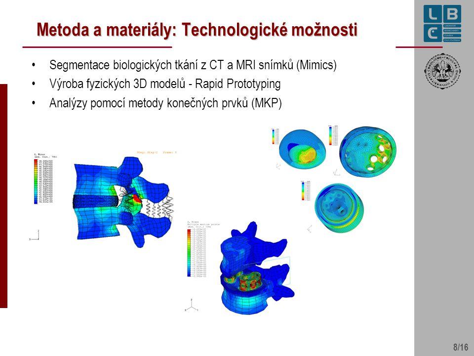 8/16 Metoda a materiály: Technologické možnosti Segmentace biologických tkání z CT a MRI snímků (Mimics) Výroba fyzických 3D modelů - Rapid Prototypin