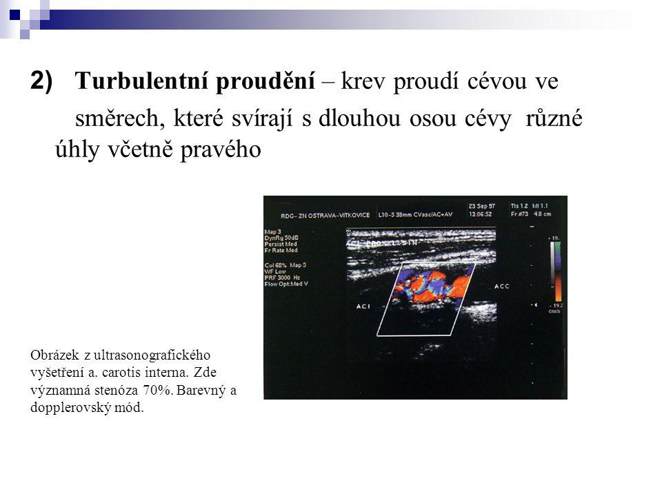 2) Turbulentní proudění – krev proudí cévou ve směrech, které svírají s dlouhou osou cévy různé úhly včetně pravého Obrázek z ultrasonografického vyše