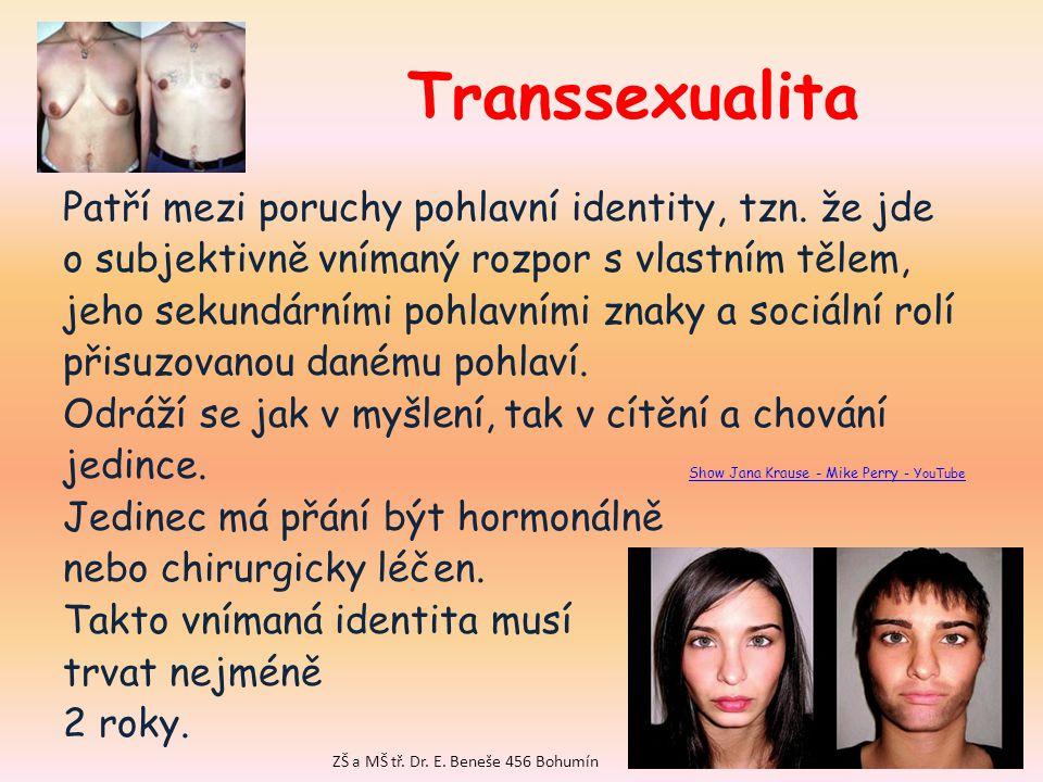 Transsexualita Patří mezi poruchy pohlavní identity, tzn.