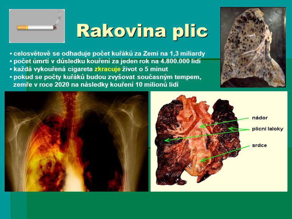 Rakovina plic celosvětově se odhaduje počet kuřáků za Zemi na 1,3 miliardy počet úmrtí v důsledku kouření za jeden rok na 4.800.000 lidí každá vykouře