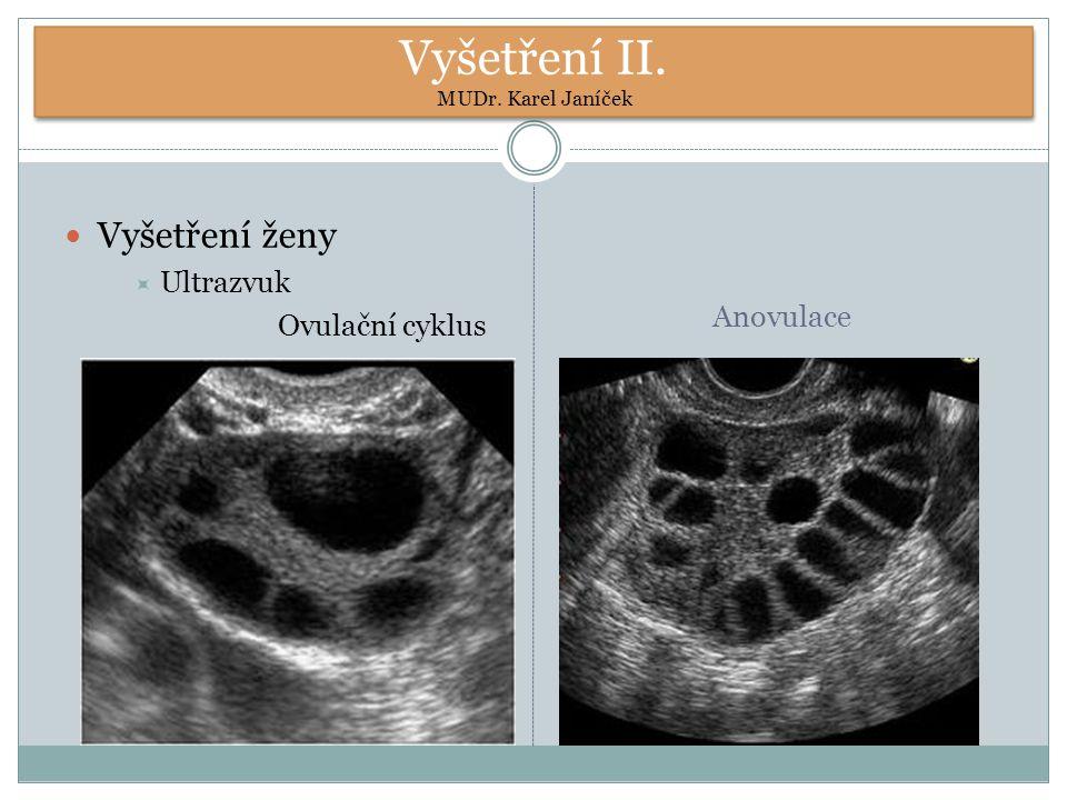Vyšetření II. MUDr. Karel Janíček Vyšetření ženy  Ultrazvuk Ovulační cyklus Anovulace