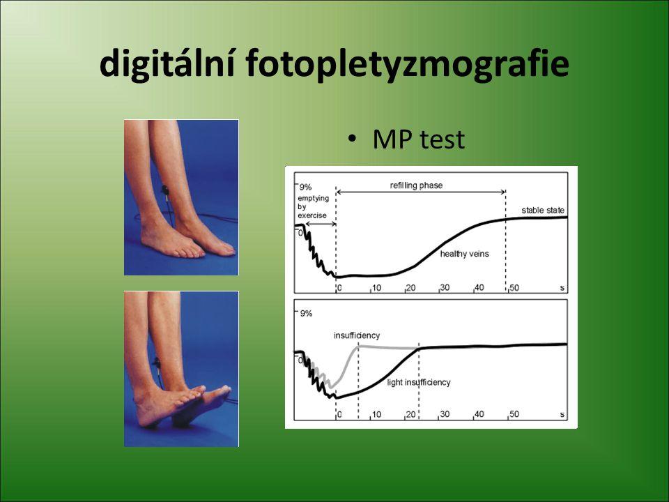digitální fotopletyzmografie MP test