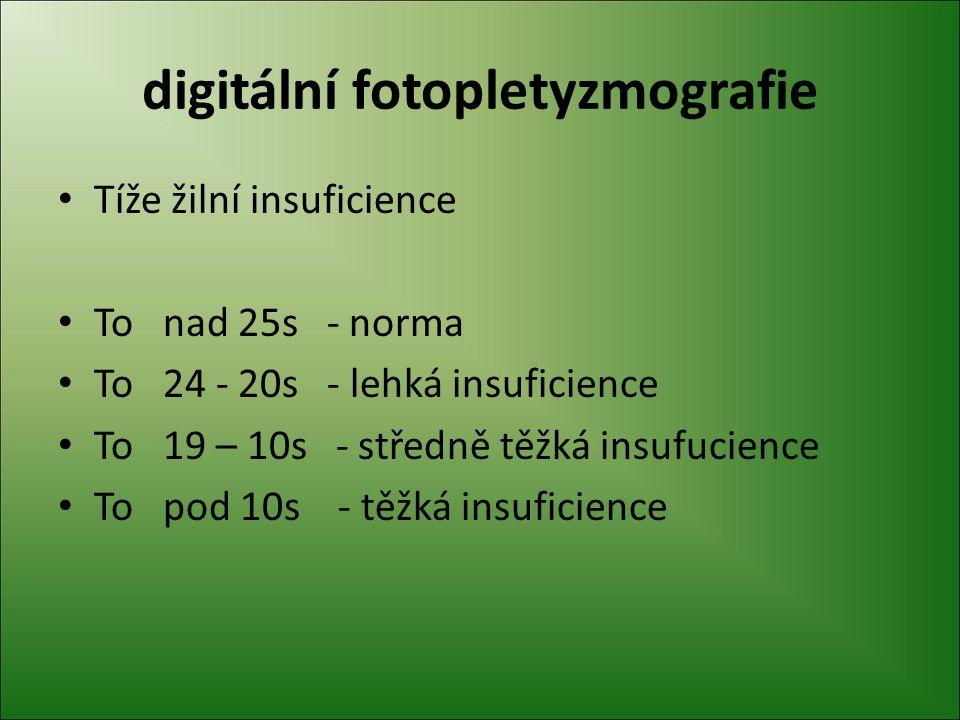 digitální fotopletyzmografie Tíže žilní insuficience To nad 25s - norma To 24 - 20s - lehká insuficience To 19 – 10s - středně těžká insufucience To p