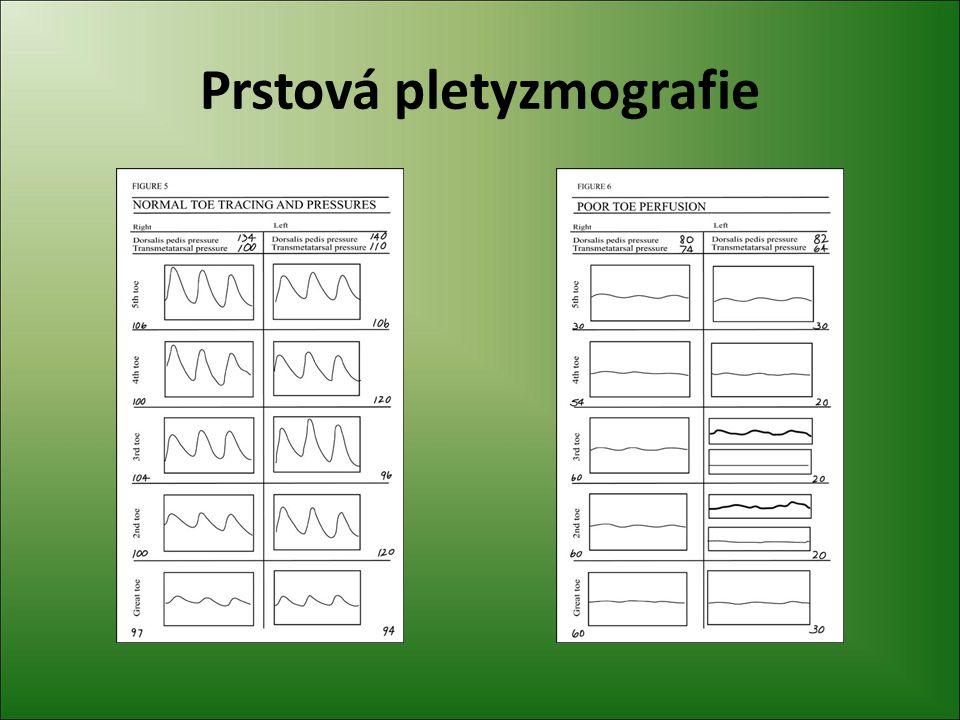 Prstová pletyzmografie