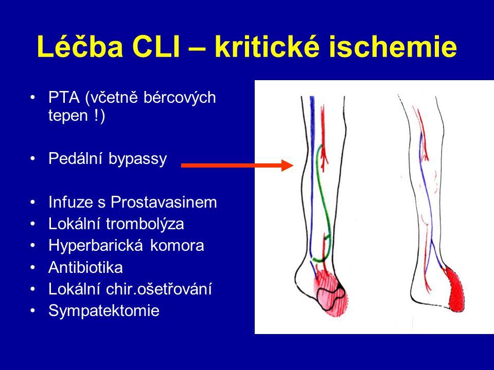 Léčba CLI – kritické ischemie PTA (včetně bércových tepen !) Pedální bypassy Infuze s Prostavasinem Lokální trombolýza Hyperbarická komora Antibiotika Lokální chir.ošetřování Sympatektomie