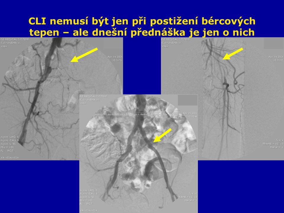 CLI při špatném outflow 60- letý muž Trombektomie F-P bypassu před měsícem Rozvoj defektu 5.prstu PDK