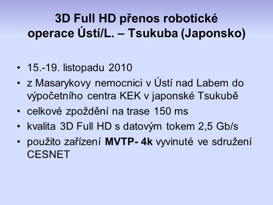 3D Full HD přenos robotické operace Ústí/L. – Tsukuba (Japonsko) 15.-19.