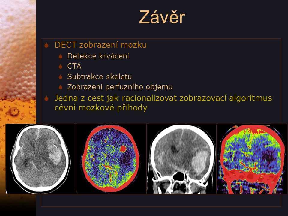  DECT zobrazení mozku  Detekce krvácení  CTA  Subtrakce skeletu  Zobrazení perfuzního objemu  Jedna z cest jak racionalizovat zobrazovací algoritmus cévní mozkové příhody Závěr