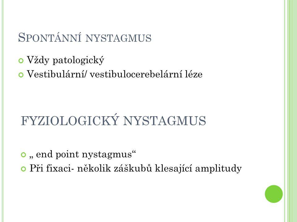 """S PONTÁNNÍ NYSTAGMUS Vždy patologický Vestibulární/ vestibulocerebelární léze FYZIOLOGICKÝ NYSTAGMUS """" end point nystagmus Při fixaci- několik záškubů klesající amplitudy"""