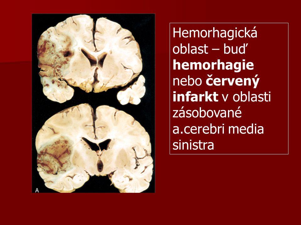 Hemorhagická oblast – buď hemorhagie nebo červený infarkt v oblasti zásobované a.cerebri media sinistra
