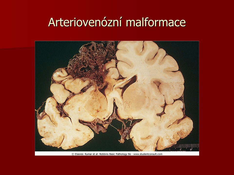 Krvácení do dutiny lební Epidurální – mezi důru a přirostlý periost, jen po fraktuře lebky, z meningeálních cév Epidurální – mezi důru a přirostlý periost, jen po fraktuře lebky, z meningeálních cév Subdurální – mezi důru a arachnoideu, z přetržených přemosťujících žil Subdurální – mezi důru a arachnoideu, z přetržených přemosťujících žil Suarachnoideální – mezi arachnoideu a piu mater,nejčastěji prasklé aneurysma Willisova kruhu Suarachnoideální – mezi arachnoideu a piu mater,nejčastěji prasklé aneurysma Willisova kruhu Intracerebrální – při hypertonické nemoci, po ruptuře do komory- hematocefalus Intracerebrální – při hypertonické nemoci, po ruptuře do komory- hematocefalus