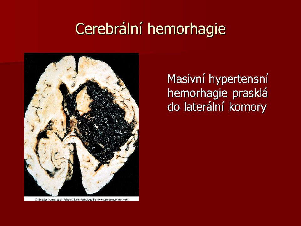 Cerebrální hemorhagie Masivní hypertensní hemorhagie prasklá do laterální komory Masivní hypertensní hemorhagie prasklá do laterální komory