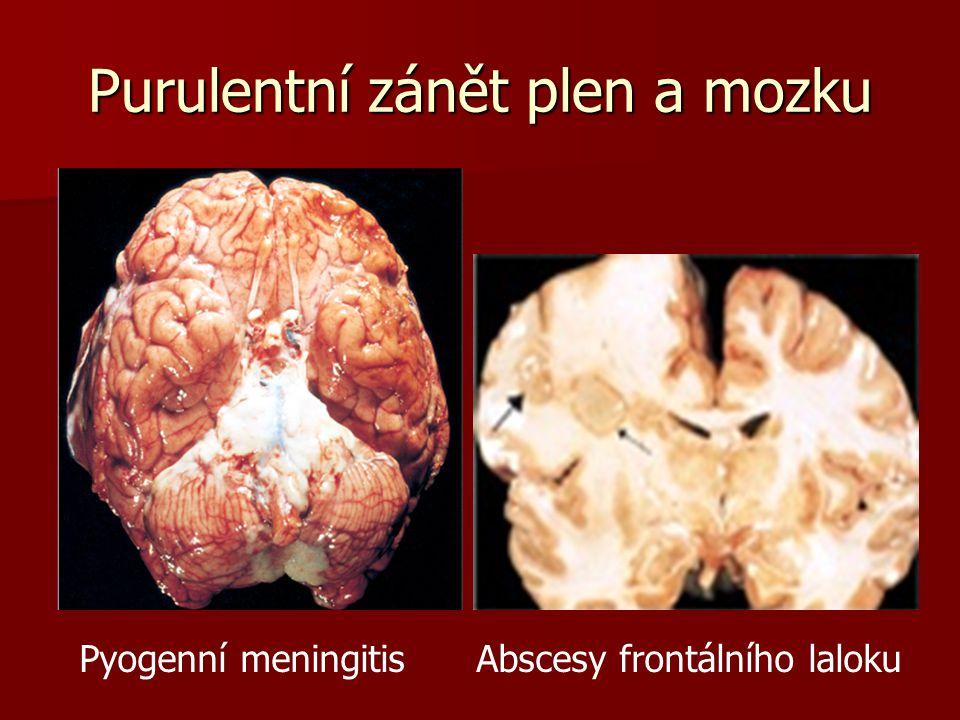 Kryptokoková meningoencefalitis Vlevo: četná místa tkáňové destrukce, sapojená s šířením kvasinek v perivaskulárních prostorech.