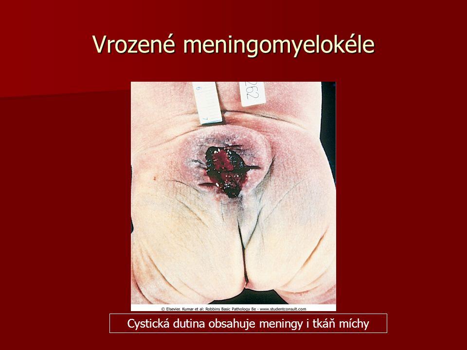 Vrozené meningomyelokéle Cystická dutina obsahuje meningy i tkáň míchy