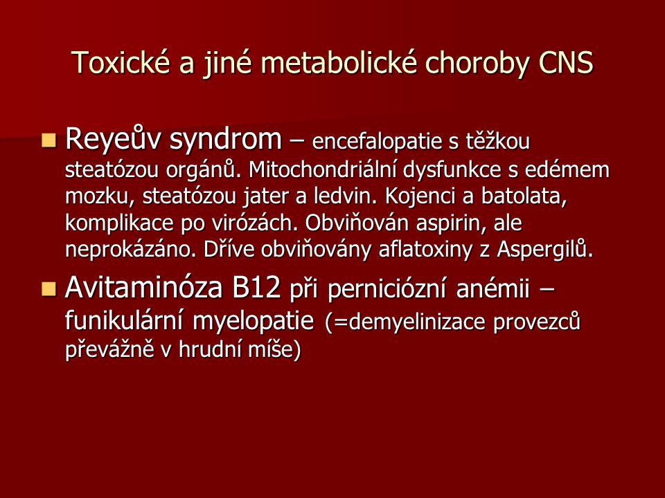 Toxické a jiné metabolické choroby CNS Reyeův syndrom – encefalopatie s těžkou steatózou orgánů.