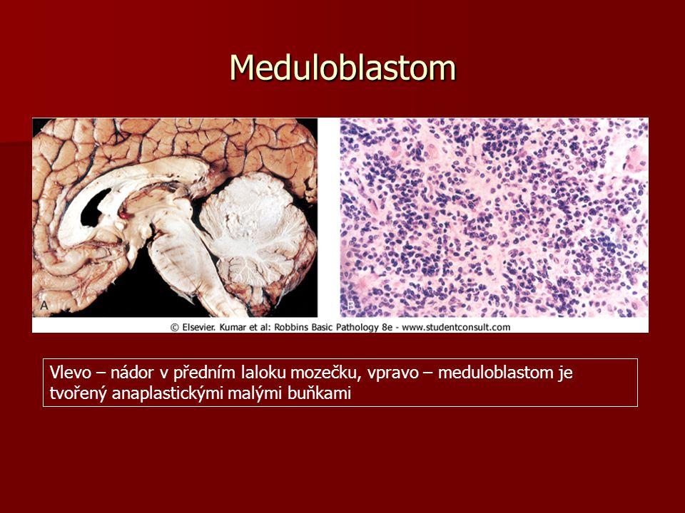 Meduloblastom Vlevo – nádor v předním laloku mozečku, vpravo – meduloblastom je tvořený anaplastickými malými buňkami