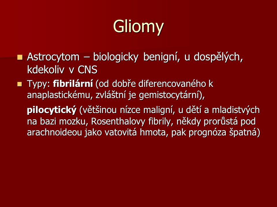 Gliomy Astrocytom – biologicky benigní, u dospělých, kdekoliv v CNS Astrocytom – biologicky benigní, u dospělých, kdekoliv v CNS Typy: fibrilární (od dobře diferencovaného k anaplastickému, zvláštní je gemistocytární), Typy: fibrilární (od dobře diferencovaného k anaplastickému, zvláštní je gemistocytární), pilocytický (většinou nízce maligní, u dětí a mladistvých na bazi mozku, Rosenthalovy fibrily, někdy prorůstá pod arachnoideou jako vatovitá hmota, pak prognóza špatná) pilocytický (většinou nízce maligní, u dětí a mladistvých na bazi mozku, Rosenthalovy fibrily, někdy prorůstá pod arachnoideou jako vatovitá hmota, pak prognóza špatná)