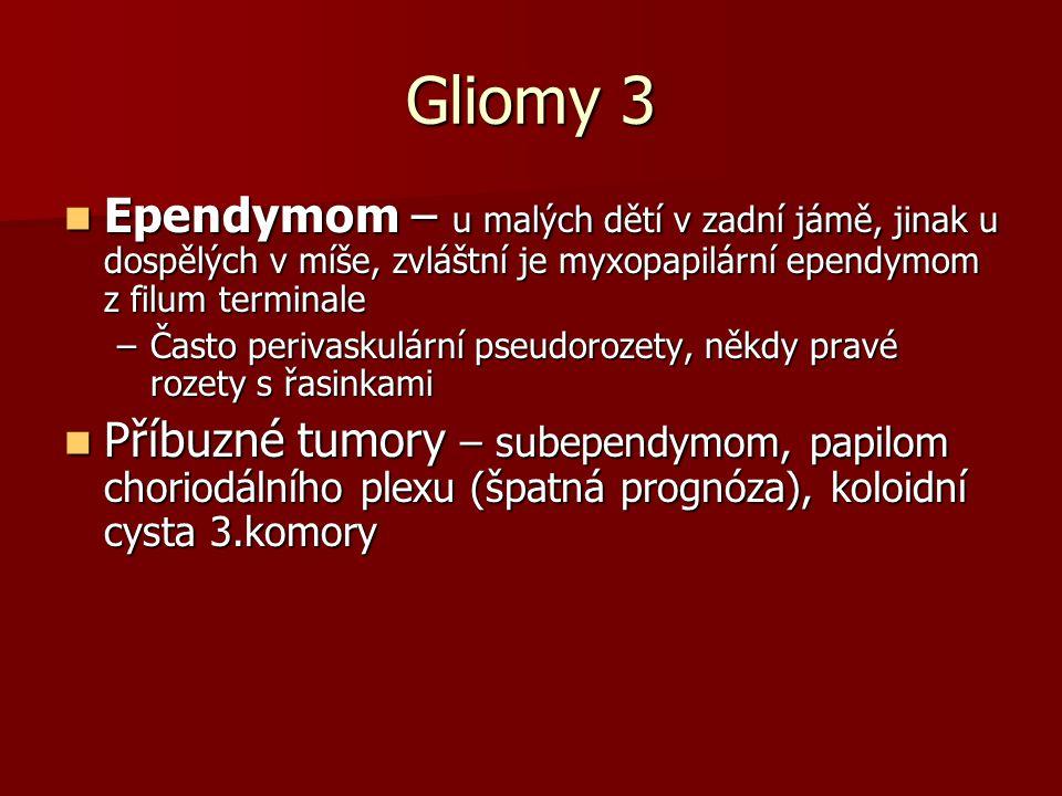 Gliomy 3 Ependymom – u malých dětí v zadní jámě, jinak u dospělých v míše, zvláštní je myxopapilární ependymom z filum terminale Ependymom – u malých dětí v zadní jámě, jinak u dospělých v míše, zvláštní je myxopapilární ependymom z filum terminale –Často perivaskulární pseudorozety, někdy pravé rozety s řasinkami Příbuzné tumory – subependymom, papilom choriodálního plexu (špatná prognóza), koloidní cysta 3.komory Příbuzné tumory – subependymom, papilom choriodálního plexu (špatná prognóza), koloidní cysta 3.komory