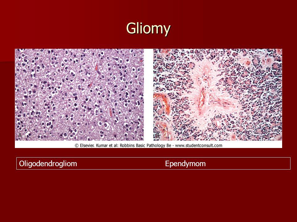 Méně časté nádory CNS Děti: pleomorfní xantoastrocytom, Děti: pleomorfní xantoastrocytom, gliom mozkového kmene gliom mozkového kmene atypický teratoidní/rhabdoidní tumor atypický teratoidní/rhabdoidní tumor –Ve 2.-3.dekádě: dysembryoblastický neuroepiteliální tumor Pinealom – izomorfní a anizomorfní Pinealom – izomorfní a anizomorfní Lymfom mozku – většinou z B buněk, u AIDS a jiných imunodeficiencí Lymfom mozku – většinou z B buněk, u AIDS a jiných imunodeficiencí