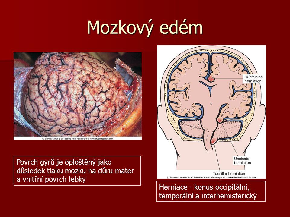 Posunové krvácení do kmene Masivní stlačení edematózního mozku vede k přetržení cév, které vstupují do mostu kolem střední čáry, což způsobí hemoragii
