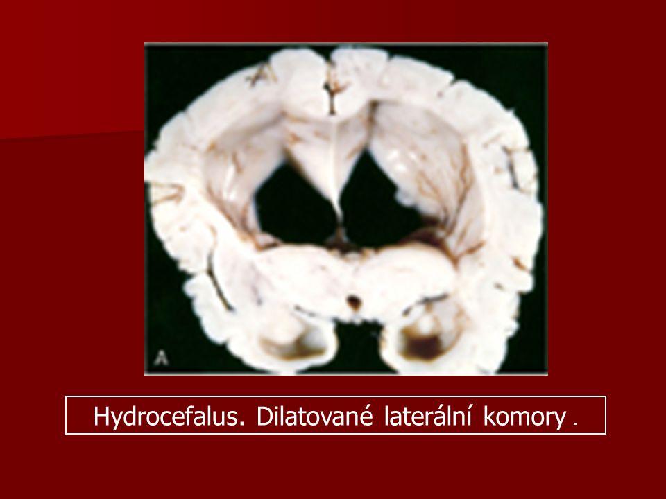 Hydrocefalus. Dilatované laterální komory.