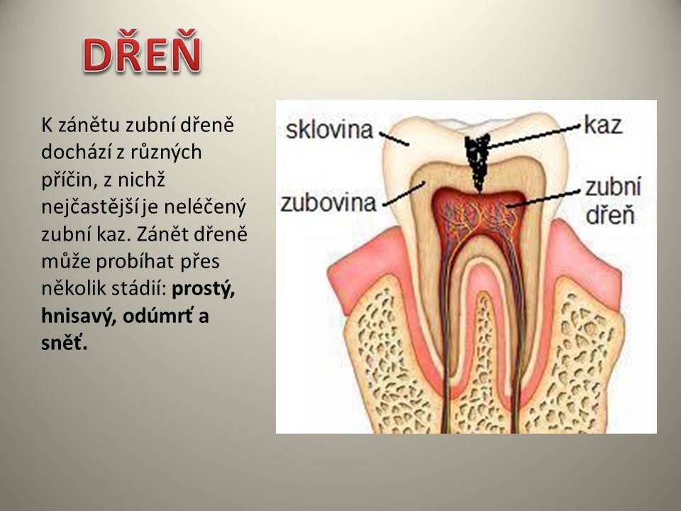 K zánětu zubní dřeně dochází z různých příčin, z nichž nejčastější je neléčený zubní kaz. Zánět dřeně může probíhat přes několik stádií: prostý, hnisa