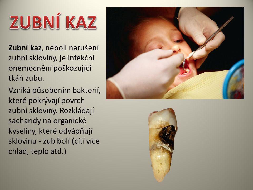 Zubní kaz, neboli narušení zubní skloviny, je infekční onemocnění poškozující tkáň zubu. Vzniká působením bakterií, které pokrývají povrch zubní sklov