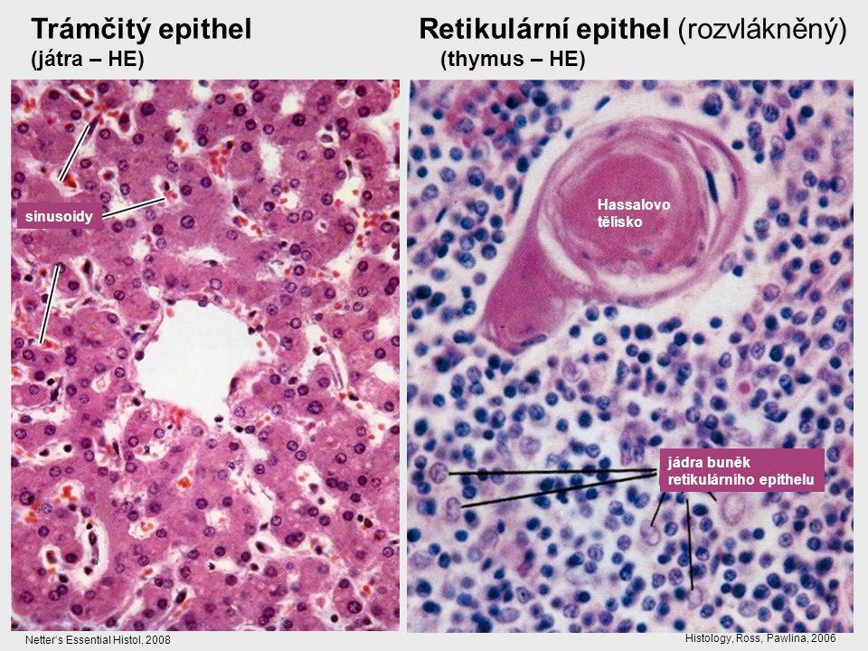 Trámčitý epithel Retikulární epithel (rozvlákněný) (játra – HE) (thymus – HE) sinusoidy jádra buněk retikulárního epithelu Hassalovo tělísko Netter's