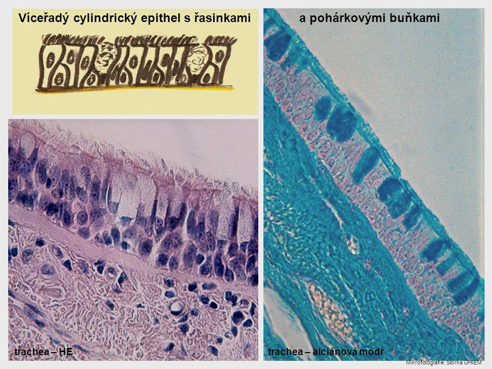 Víceřadý cylindrický epithel s řasinkami a pohárkovými buňkami trachea – HE trachea – alciánová modř Mikrofotografie: Sbírka ÚHIEM
