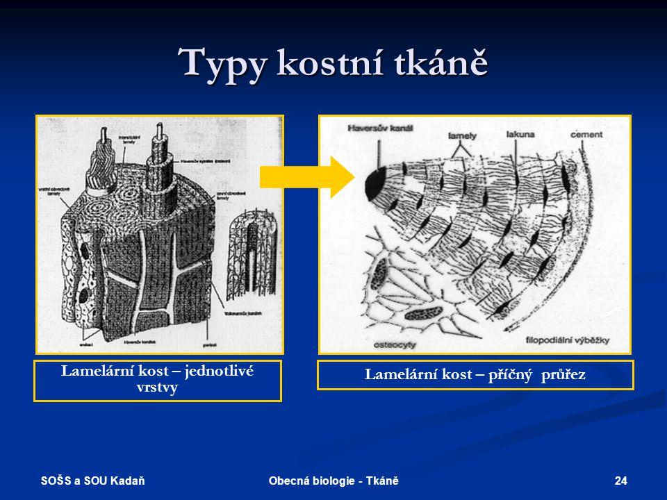 SOŠS a SOU Kadaň 23Obecná biologie - Tkáně Kost Nejtvrdší pojivo – křehké Nejtvrdší pojivo – křehké Buňky – osteocyty, osteoblasty, osteoklasty Buňky – osteocyty, osteoblasty, osteoklasty Mezibuněčná hmota – organická složka osein, minerální složka – fosforečnan vápenatý, uhličitan vápenatý, fosforečnan hořečnatý, chlorid sodný Mezibuněčná hmota – organická složka osein, minerální složka – fosforečnan vápenatý, uhličitan vápenatý, fosforečnan hořečnatý, chlorid sodný Počínaje kostnatými rybami tvoří kostru obratlovců.