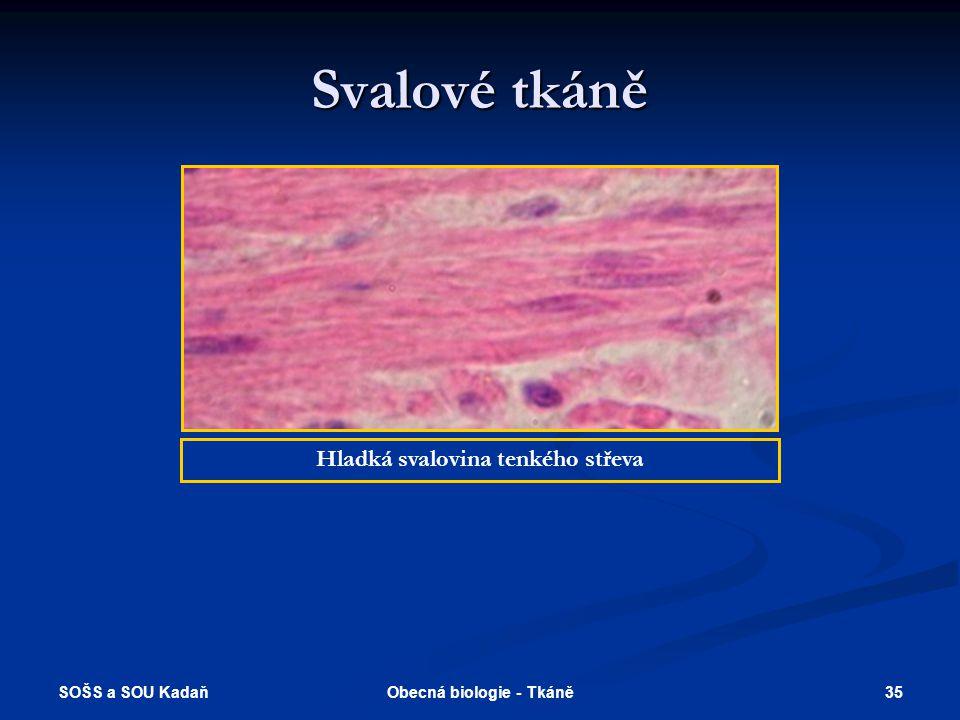 SOŠS a SOU Kadaň 34Obecná biologie - Tkáně Svalové tkáně Hladká svalovina Příčně pruhovaná svalovina Srdeční – trámčitá svalovina