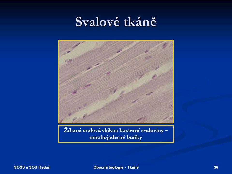 SOŠS a SOU Kadaň 35Obecná biologie - Tkáně Svalové tkáně Hladká svalovina tenkého střeva