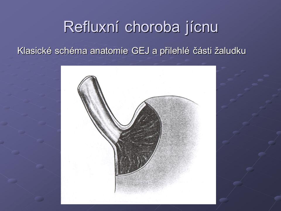 Refluxní choroba jícnu Klasické schéma anatomie GEJ a přilehlé části žaludku