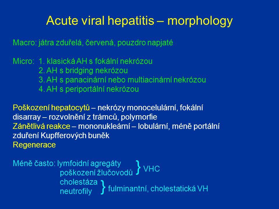 Cavernous haemangioma 1 Liver capsule 2 Liver parenchyma 3 Fibrous septum 4 Big vascular spaces 5 Biliary duct 12 3 4 5 3 3