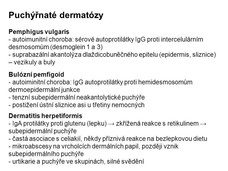 Puchýřnaté dermatózy Pemphigus vulgaris - autoimunitní choroba: sérové autoprotilátky IgG proti intercelulárním desmosomům (desmoglein 1 a 3) - suprabazální akantolýza dlaždicobuněčného epitelu (epidermis, sliznice) – vezikuly a buly Bulózní pemfigoid - autoiminitní choroba: IgG autoprotilátky proti hemidesmosomům dermoepidermální junkce - tenzní subepidermální neakantolytické puchýře - postižení ústní sliznice asi u třetiny nemocných Dermatitis herpetiformis - IgA protilátky proti glutenu (lepku) → zkřížená reakce s retikulinem → subepidermální puchýře - častá asociace s celiakií, někdy příznivá reakce na bezlepkovou dietu - mikroabscesy na vrcholcích dermálních papil, později vznik subepidermálního puchýře - urtikarie a puchýře ve skupinách, silné svědění