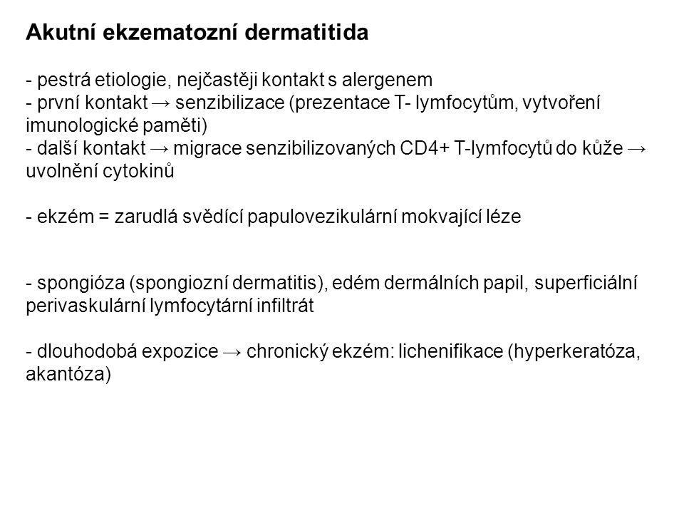 Akutní ekzematozní dermatitida - pestrá etiologie, nejčastěji kontakt s alergenem - první kontakt → senzibilizace (prezentace T- lymfocytům, vytvoření imunologické paměti) - další kontakt → migrace senzibilizovaných CD4+ T-lymfocytů do kůže → uvolnění cytokinů - ekzém = zarudlá svědící papulovezikulární mokvající léze - spongióza (spongiozní dermatitis), edém dermálních papil, superficiální perivaskulární lymfocytární infiltrát - dlouhodobá expozice → chronický ekzém: lichenifikace (hyperkeratóza, akantóza)