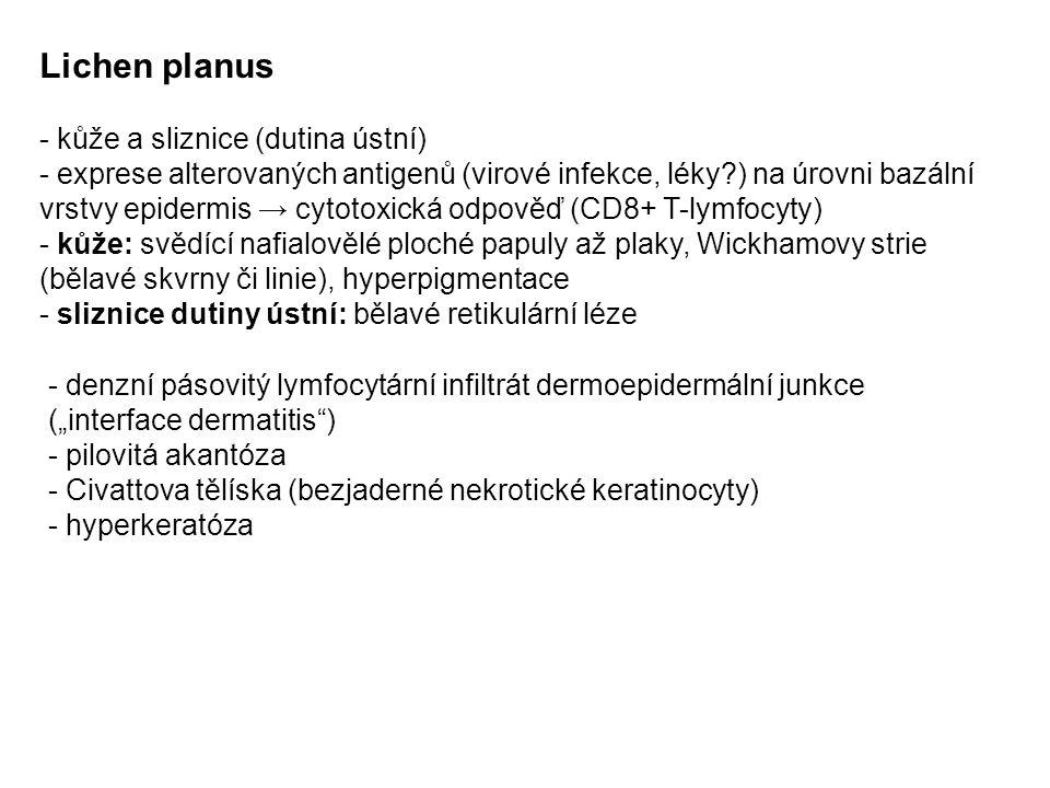 """Lichen planus - kůže a sliznice (dutina ústní) - exprese alterovaných antigenů (virové infekce, léky?) na úrovni bazální vrstvy epidermis → cytotoxická odpověď (CD8+ T-lymfocyty) - kůže: svědící nafialovělé ploché papuly až plaky, Wickhamovy strie (bělavé skvrny či linie), hyperpigmentace - sliznice dutiny ústní: bělavé retikulární léze - denzní pásovitý lymfocytární infiltrát dermoepidermální junkce (""""interface dermatitis ) - pilovitá akantóza - Civattova tělíska (bezjaderné nekrotické keratinocyty) - hyperkeratóza"""