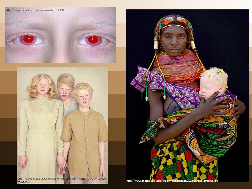 http://www.mrcophth.com/iriscases/albino11.JPG http://www.anatomybox.com/wp-content/uploads/2012/05/eric-lafforgue.jpg http://fashioncopious.typepad.c