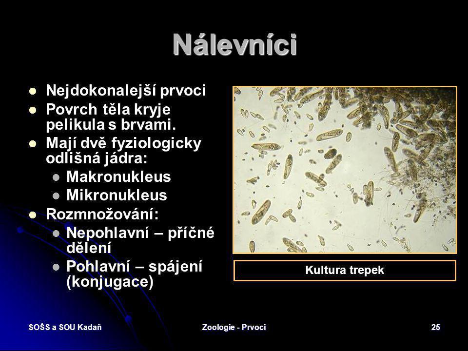 SOŠS a SOU KadaňZoologie - Prvoci24 Kokcidie Kokcidie jaterní Vyvolává v játrech králíků tvorbu drobných nádorků. Choroba – kokcidioza