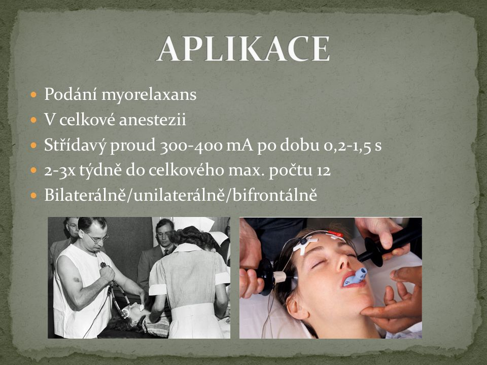 Podání myorelaxans V celkové anestezii Střídavý proud 300-400 mA po dobu 0,2-1,5 s 2-3x týdně do celkového max. počtu 12 Bilaterálně/unilaterálně/bifr