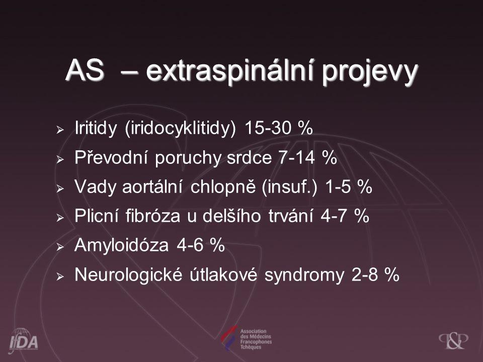 AS – extraspinální projevy  Iritidy (iridocyklitidy) 15-30 %  Převodní poruchy srdce 7-14 %  Vady aortální chlopně (insuf.) 1-5 %  Plicní fibróza