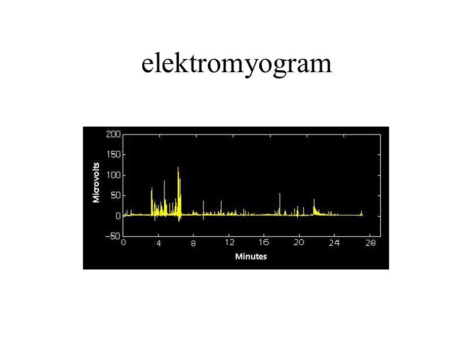 elektromyogram