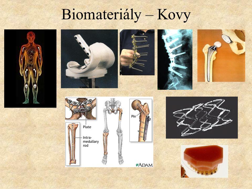 Biomateriály – Kovy