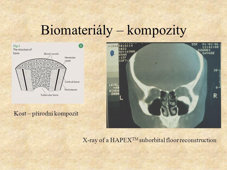 Biomateriály – kompozity Kost – přírodní kompozit X-ray of a HAPEX TM suborbital floor reconstruction
