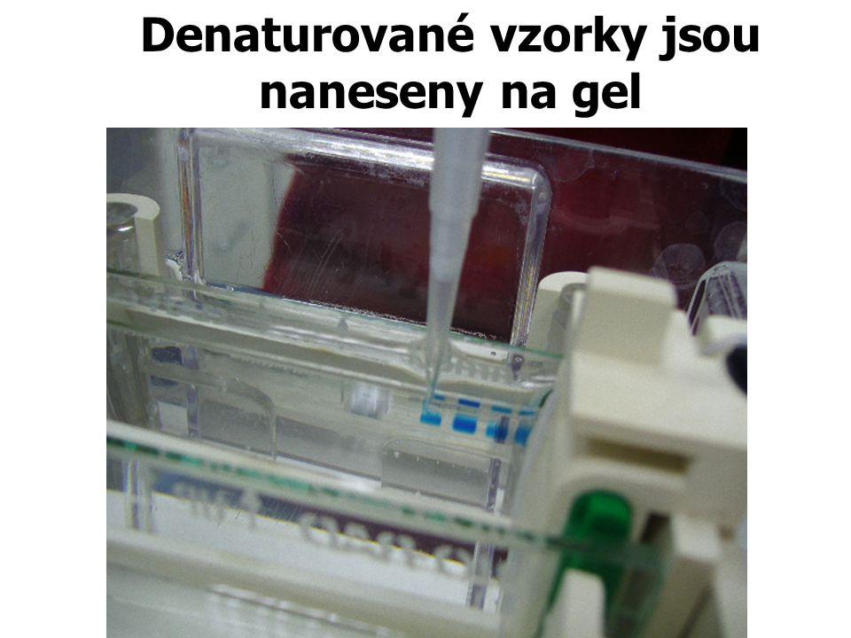 Denaturované vzorky jsou naneseny na gel