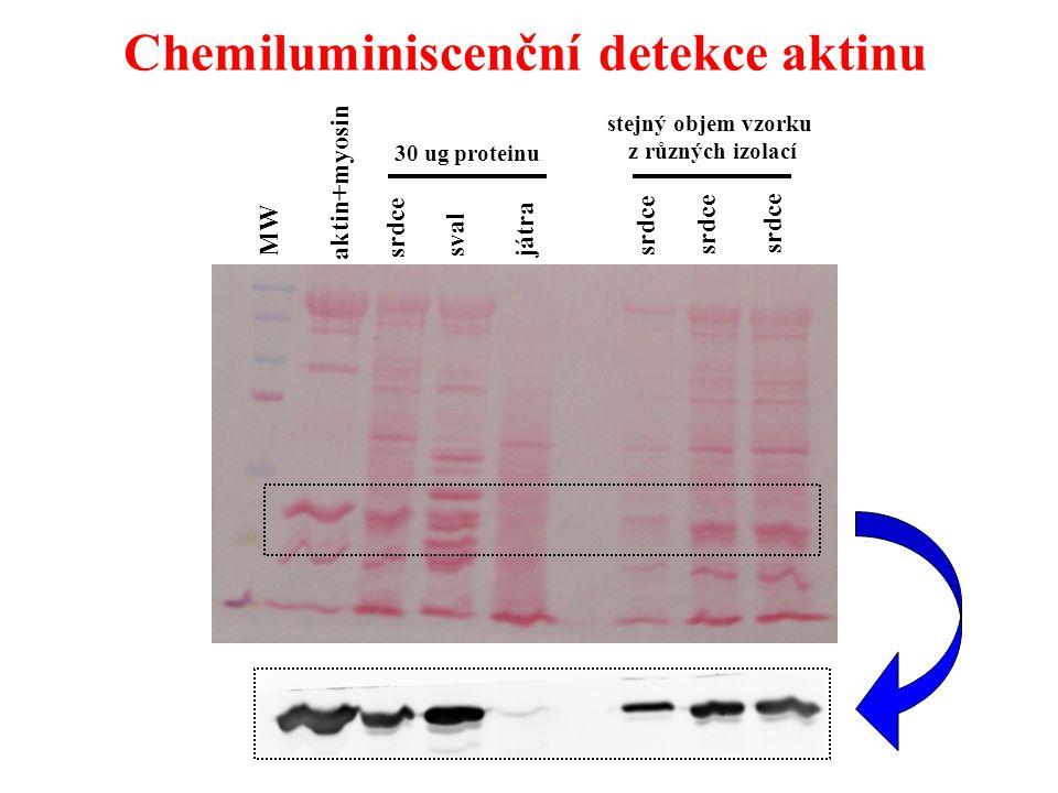 Chemiluminiscenční detekce aktinu aktin+myosin srdce sval játra srdce MW 30 ug proteinu stejný objem vzorku z různých izolací