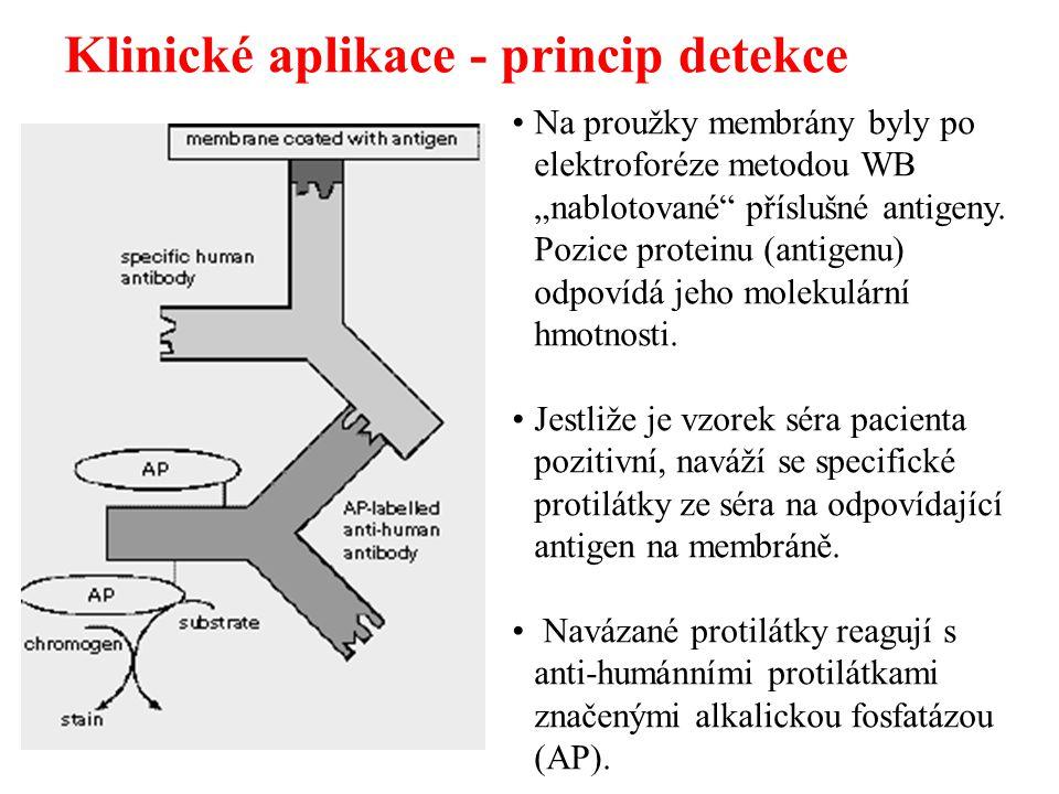 """Klinické aplikace - princip detekce Na proužky membrány byly po elektroforéze metodou WB """"nablotované"""" příslušné antigeny. Pozice proteinu (antigenu)"""