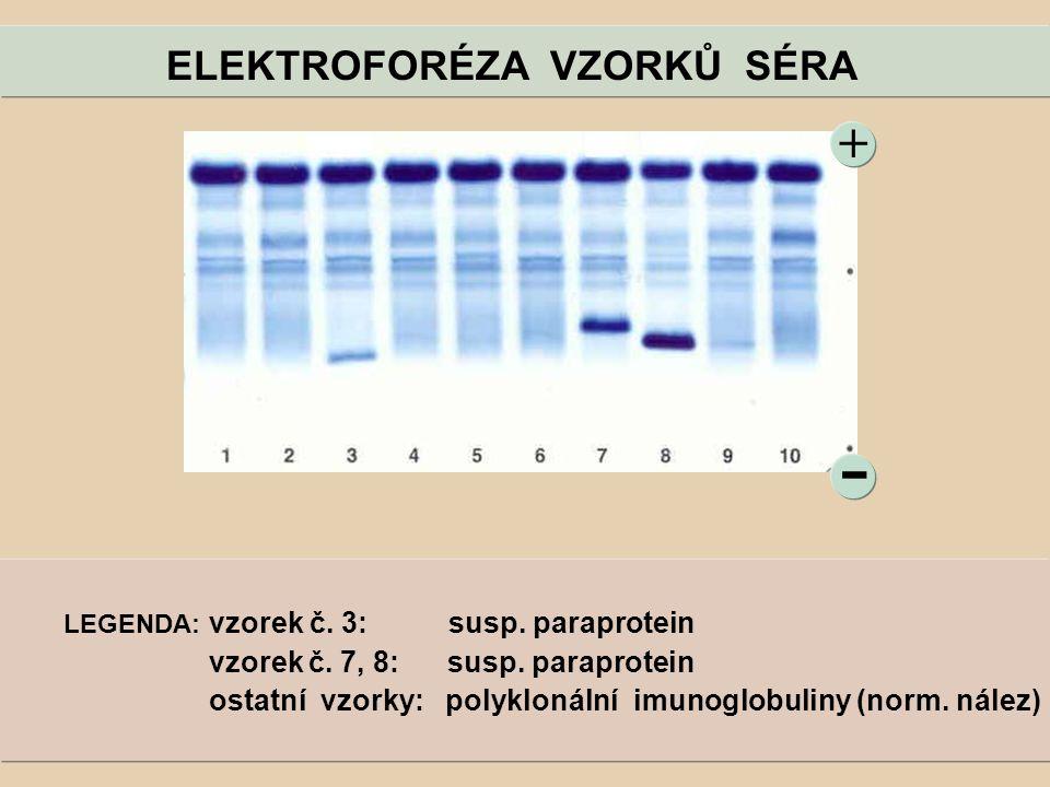 ELEKTROFORÉZA VZORKŮ SÉRA - + LEGENDA: vzorek č. 3: susp. paraprotein vzorek č. 7, 8: susp. paraprotein ostatní vzorky: polyklonální imunoglobuliny (n